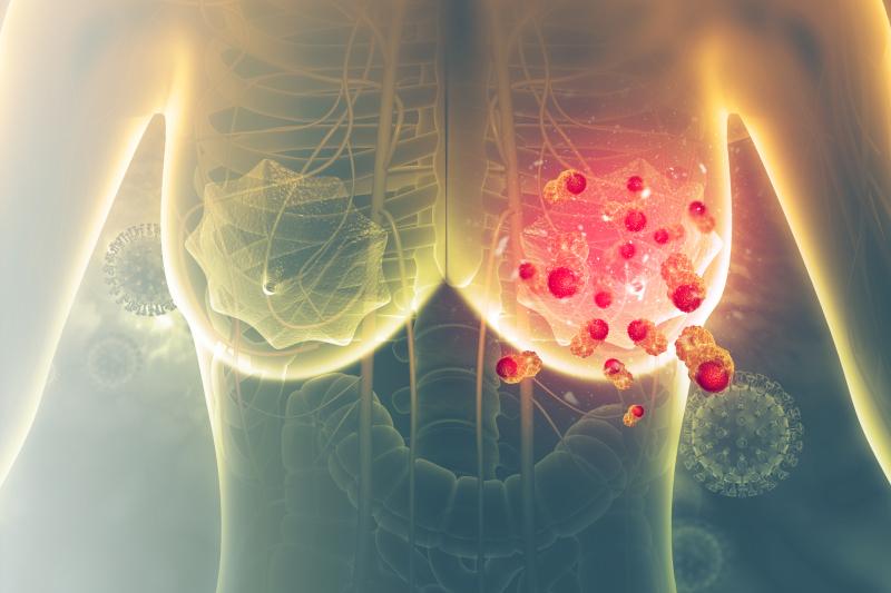 Brustkrebs - Hormone gegen das Altern?